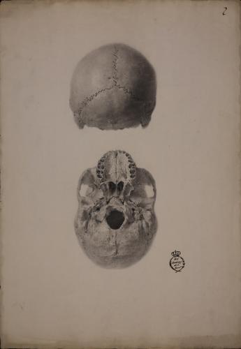 Estudio de parte posterior y base de un cráneo humano