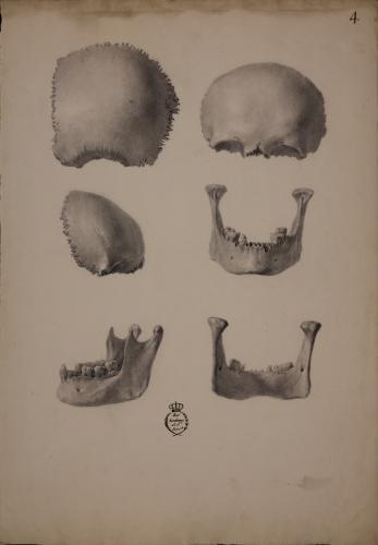 Estudio del hueso parietal, frontal y mandíbula de un cráneo